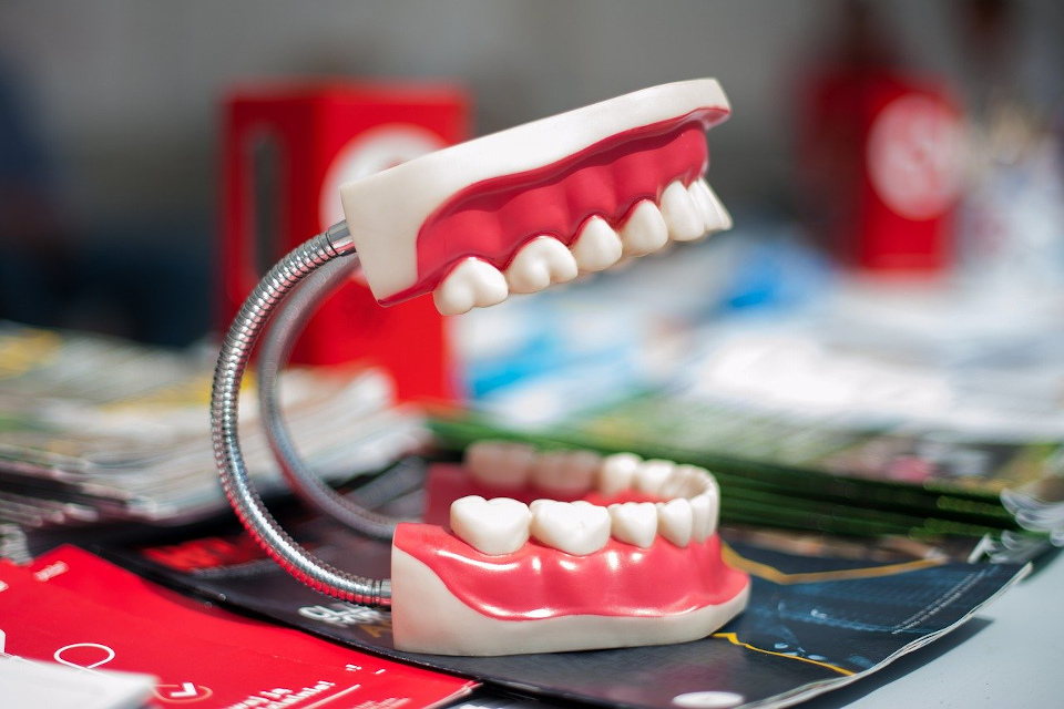 Coroane dentare de calitate pentru bunastarea dintilor: ce trebuie sa stim